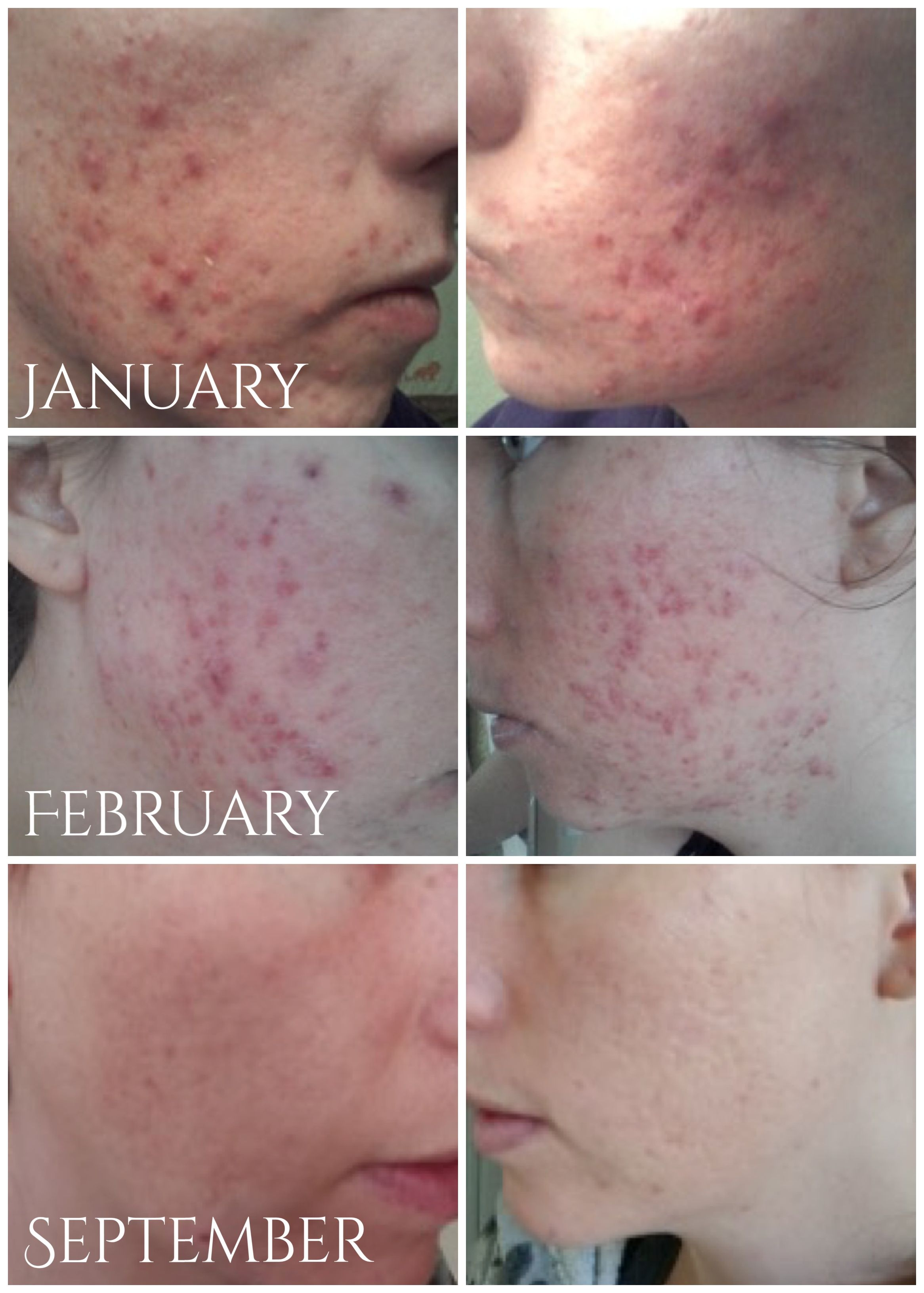 Before After Acne Treatments Micro Needling Collagen