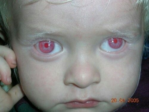 Image result for red eyes albinism