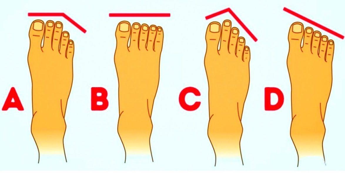 Persönlichkeit D Diese Fußform nennt sich 'Gestreckter Fuß ...
