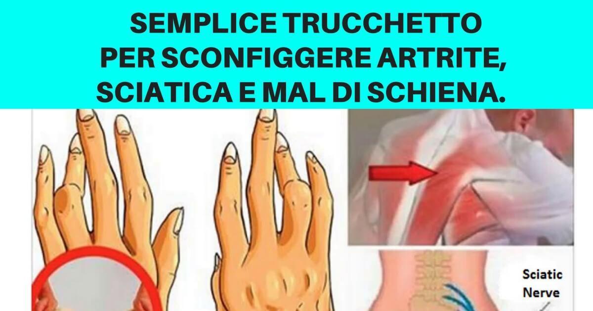 Trattamento per grave artrite nella schiena. Grave Artrite Nella Parte Superiore Della Schiena