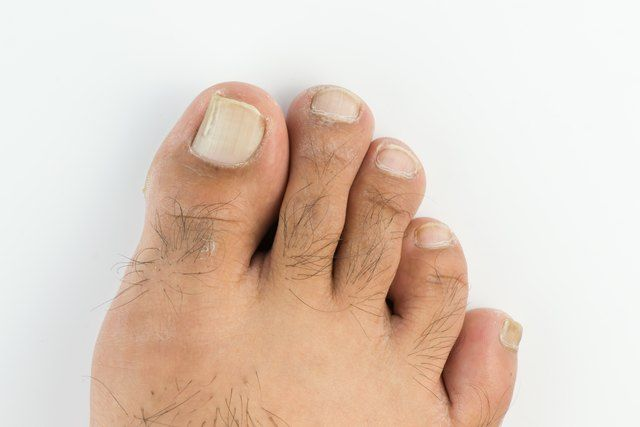 Dry feet and brittle toenails can make you uncomfortable about ...