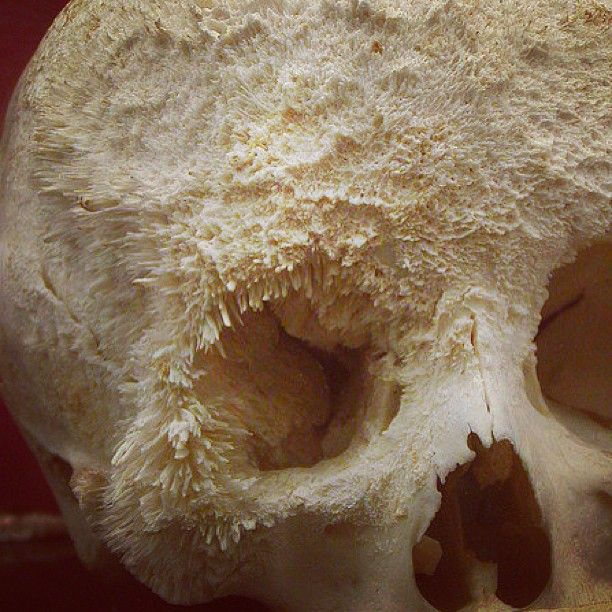 Bone Cancer Pictures Skull   Places to Visit   Pinterest   Skulls ...