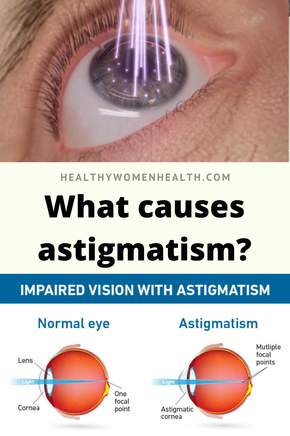 Can A Laser Correct Astigmatism With Eye Surgery Eye Health Eye Surgery Astigmatism