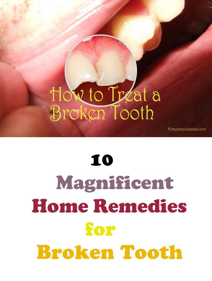 10 Magnificent Home Remedies For Broken Tooth Broken Tooth Broken Tooth Repair Cracked Tooth