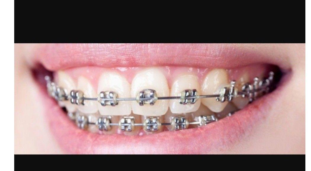 Pin by sayooo Miau Miau miau on tram Dental braces