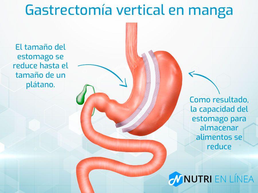 resultados de pérdida de peso de gastrectomía de manga vertical
