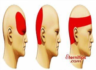 como calmar un dolor de cabeza sin pastillas