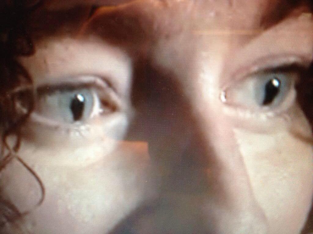 Bilateral Iris Coloboma