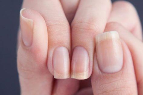 Какой витамин нужен чтобы ногти не слоились