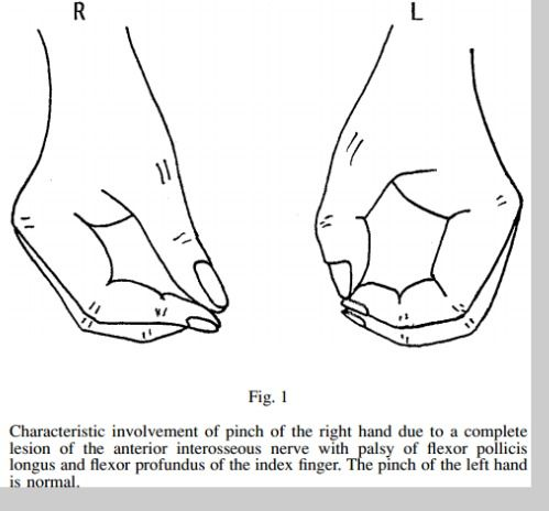 Pinch Of The Right Hand Due To A Complete Lesion Of The Anterior