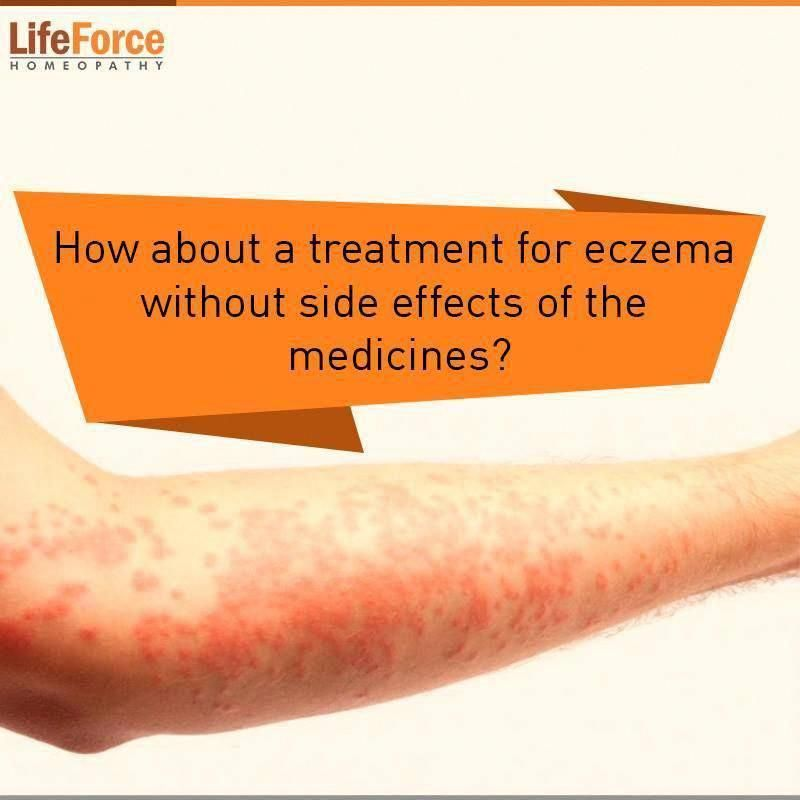 1 guidance atopic eczema in under 12s diagnosis and - 800×800