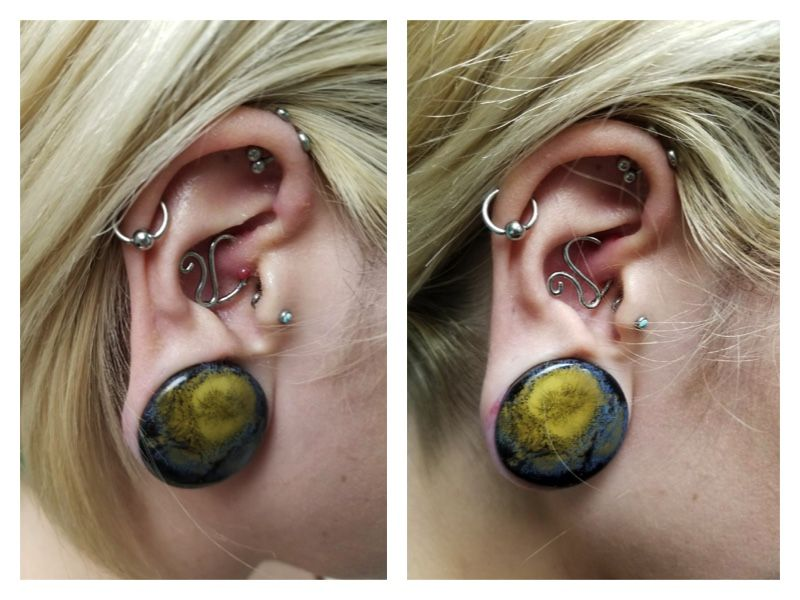 Before After Of Liv S Piercing Bump We Healed Her Piercing In