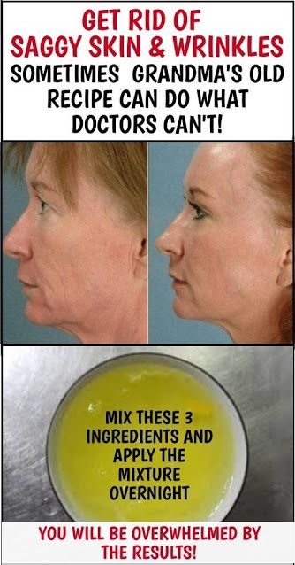 Home Remedy To Get Rid Of Saggy Skin And Wrinkles