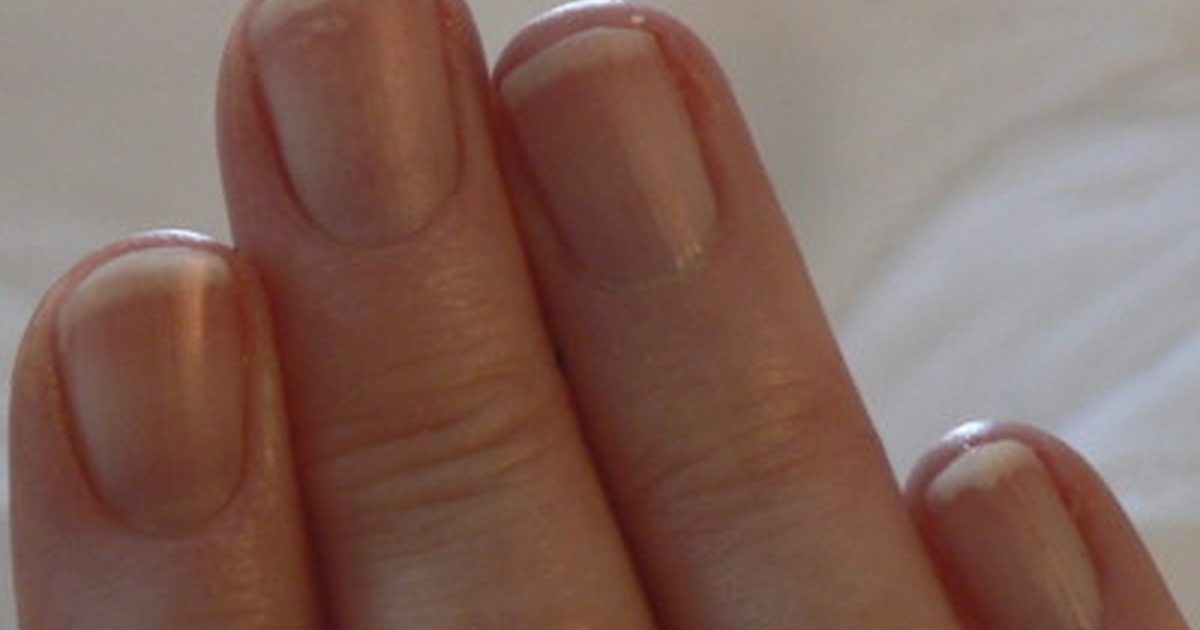 How to Treat Fingernail Fungus   Fingernail fungus, Cure and Remedies