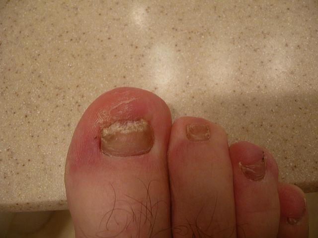 Natural nail fungus treatment here http://nailfungushelper.net/how ...