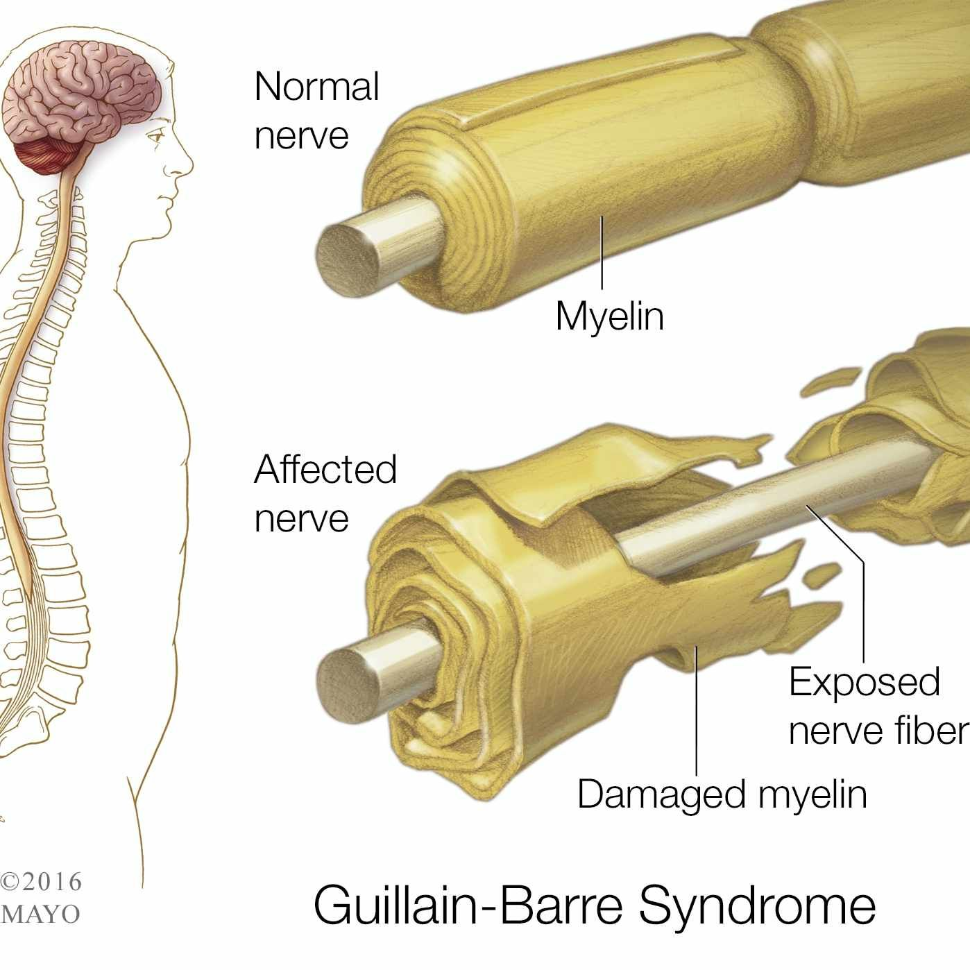 a research on guillain barre syndrome Guillain-barrè syndrome is an autoimmune condition in which the person's peripheral nerves are attacked by the body's own immune defence system.