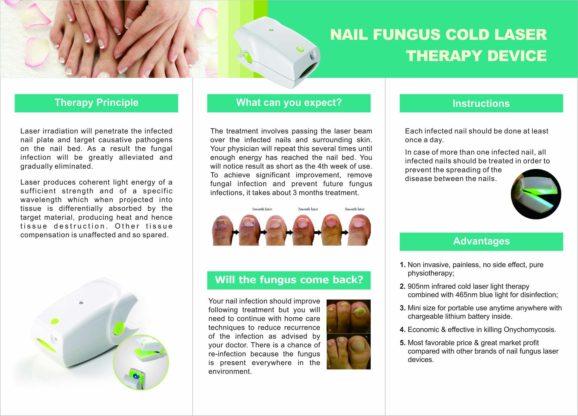 Nail Fungus Cold Laser brochure/Melissa@hnc.cn   Nail Fungus Cold ...