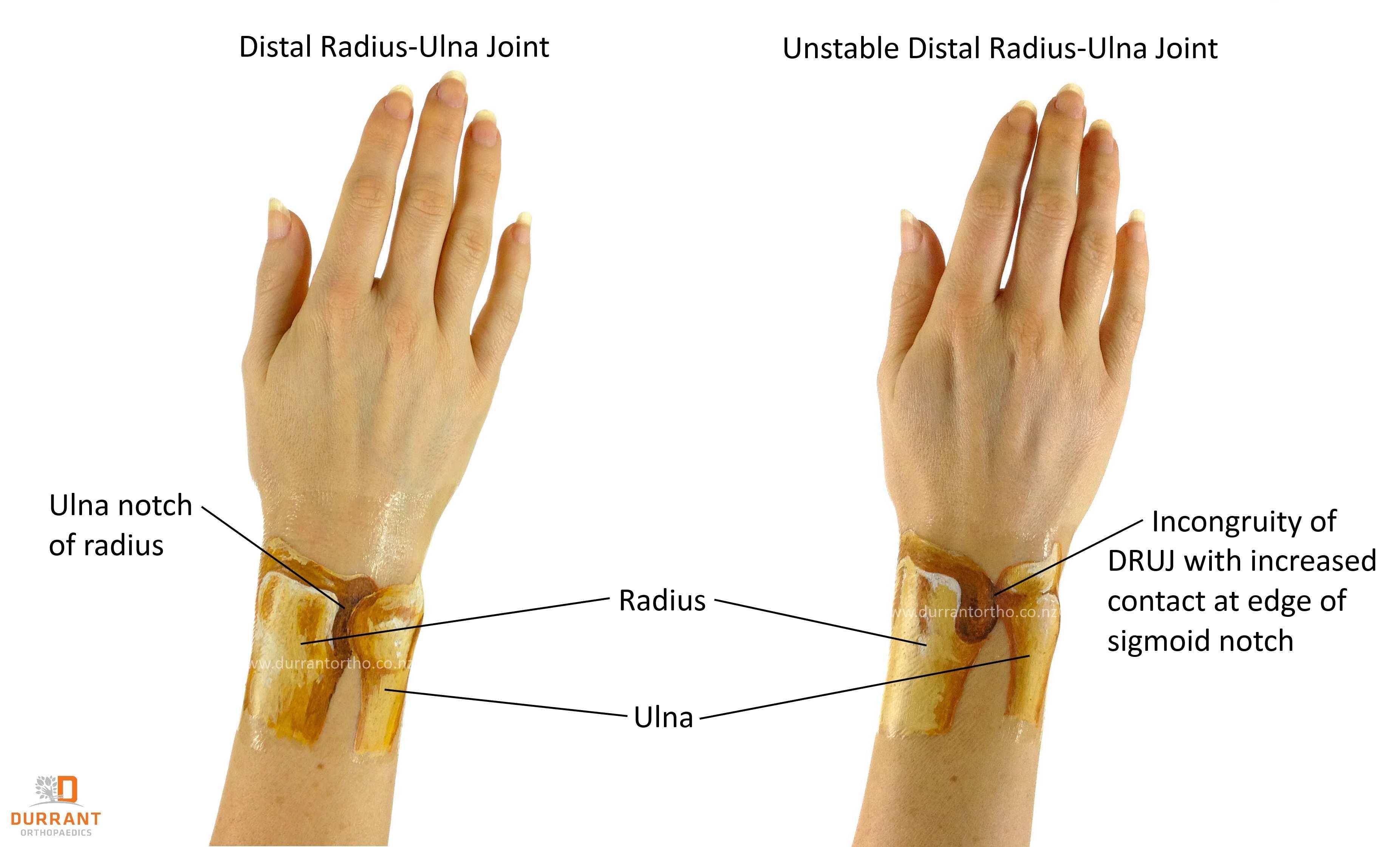 Distal Radio-Ulna Joint or DRUJ instability. | ulna | Pinterest