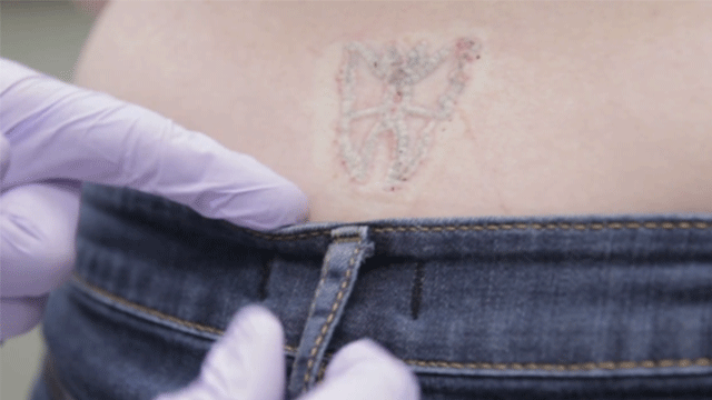Learn How PicoWay Laser Is Different From Traditional Tattoo Removal ...