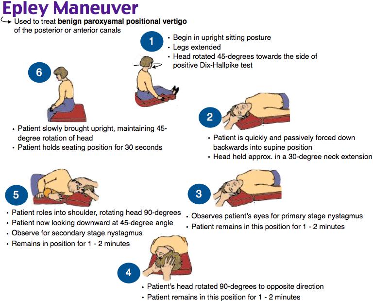 Epley Maneuver Nurse Practitioner School Nursing Procedures Medical Mnemonics