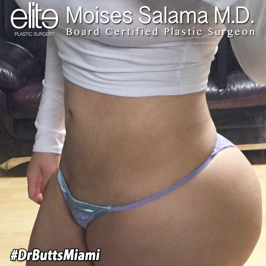 BrazilianButtLift #fattransfer #buttaugmentation #buttlift