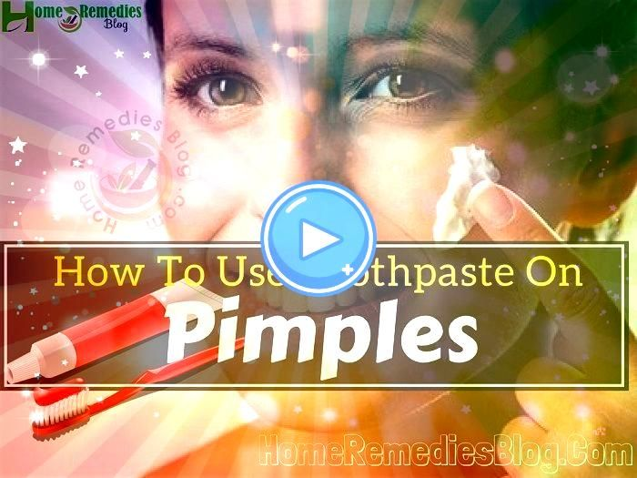 Way To Get Rid Of Acne Overnight  Find Out How To Remove Pimples Naturally Overnight Does Toothpaste Get Rid Of Pimples  Home Remedies For Pimples For Oily Skin  How To G...