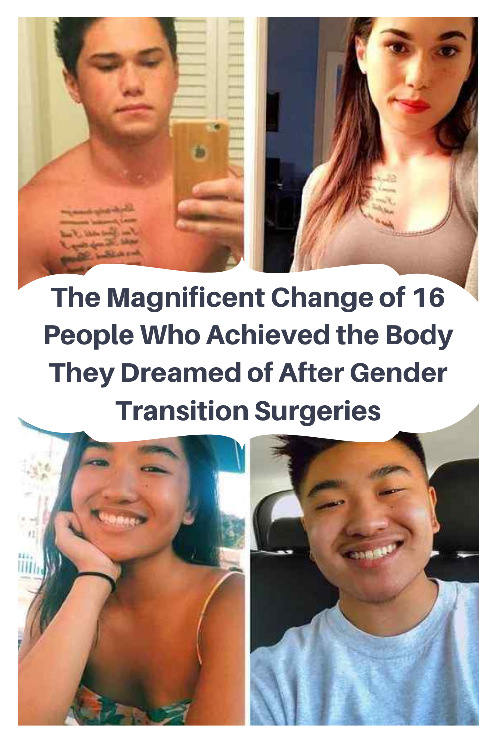 Magnificent Change Of People Who Chieved The Body They Dreamed Of After Gender Zransition Surgeries Body Surgery Gender