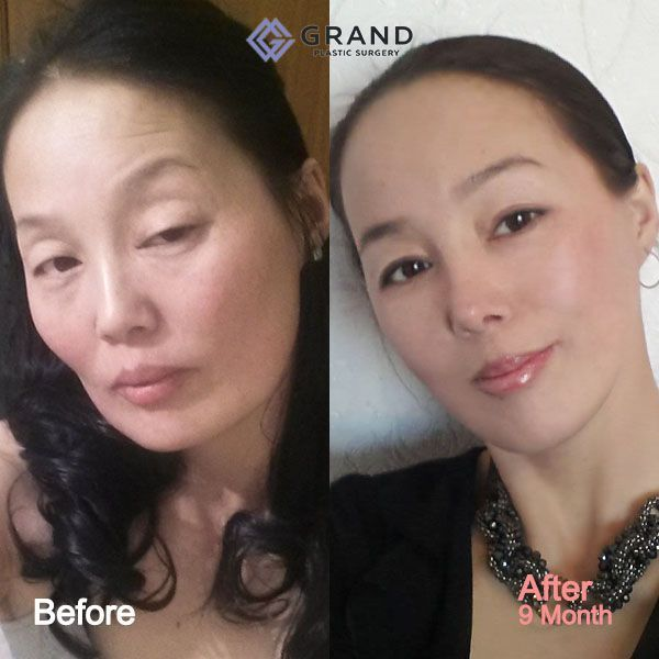 This amazing before-and-after photo shows what Grand's anti-aging operation is. Sch ... This amazing before-and-after photo shows what Grand's anti-aging operation is. Sch ...