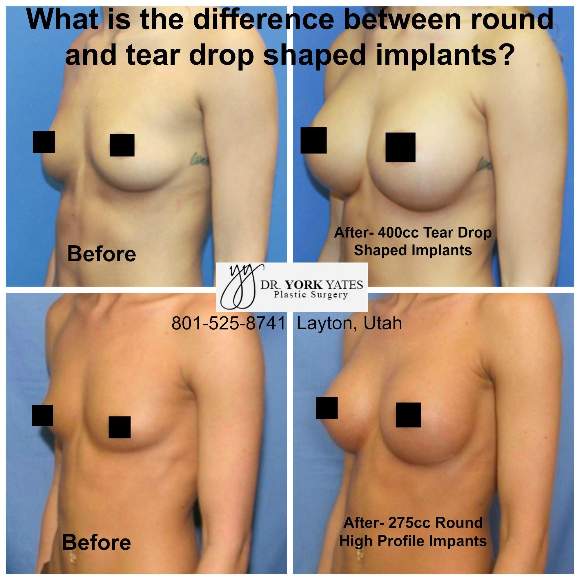 Augmentation utah breast surgery