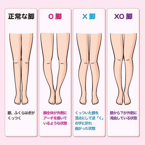 O脚、X脚、XO脚の違いをイラストで解説