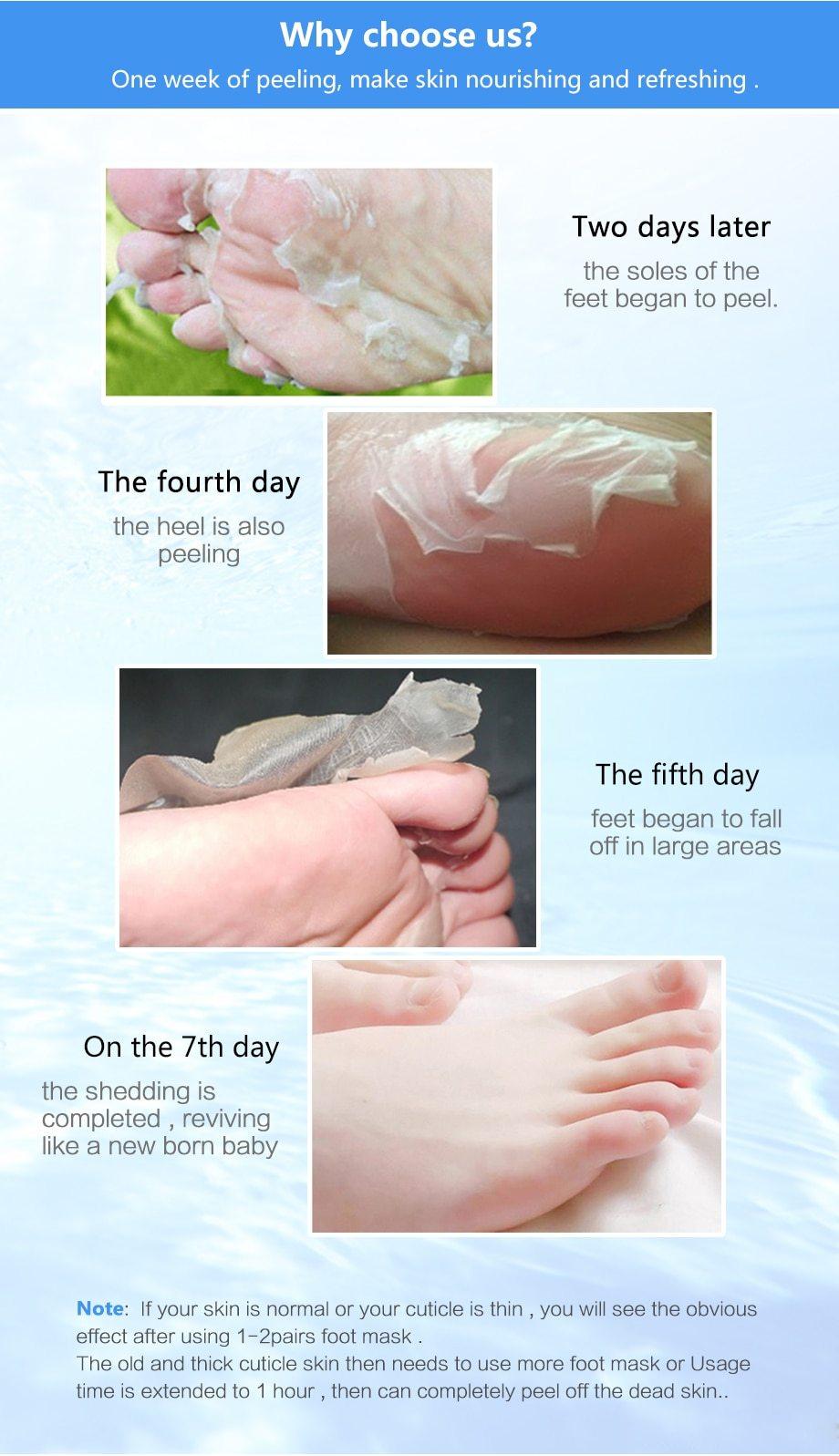 Foot Peeling Masks In 2020 Dry Skin On Feet Feet Care Skin So Soft