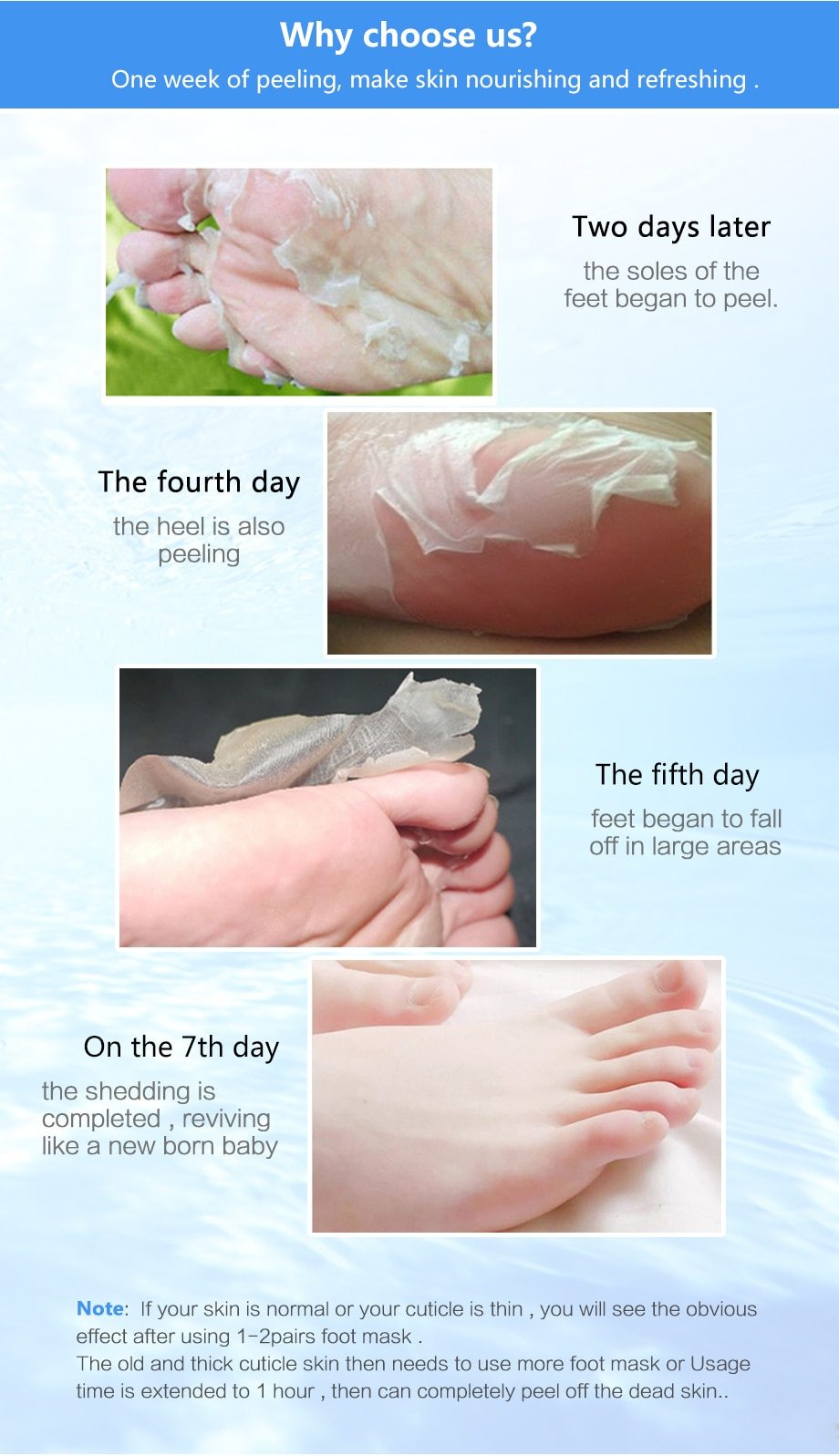 Foot Peeling Masks In 2020 Dry Skin On Feet Feet Care Skin So Soft