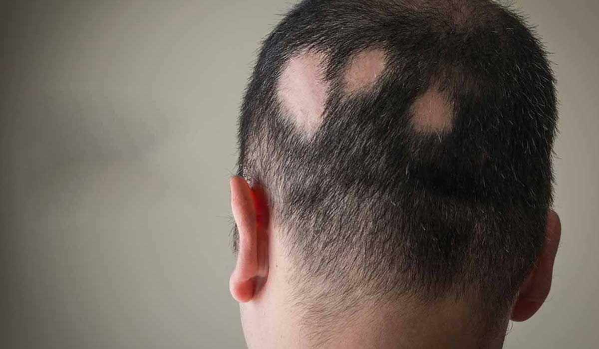 الثعلبة وهل هي معدية Alopecia Hair Loss Treatment Hair Loss Treatment Hair Loss
