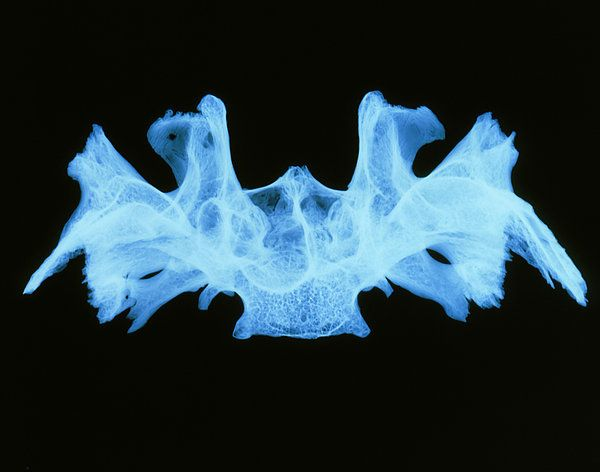 x-ray image of a human sphenoid bone art print by d. roberts, Human body