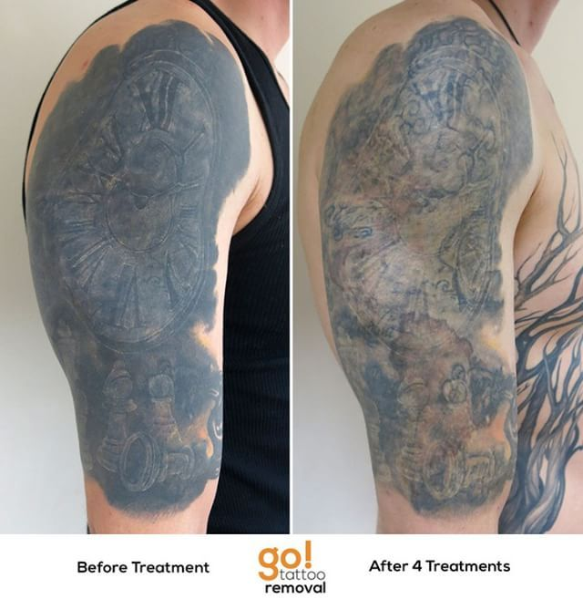 After some cover-up attempts and a near blackout the client wasn\'t ...