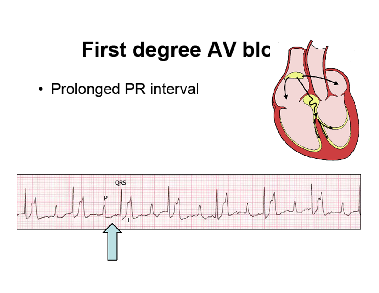 Av heart block and other ekg abnormalities nursing pinterest av heart block and other ekg abnormalities ccuart Images
