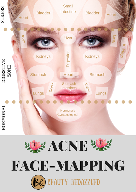 Acne Face Map Acne Face Mapping   What does Your Acne Tell YOU? | InfluenceHer  Acne Face Map