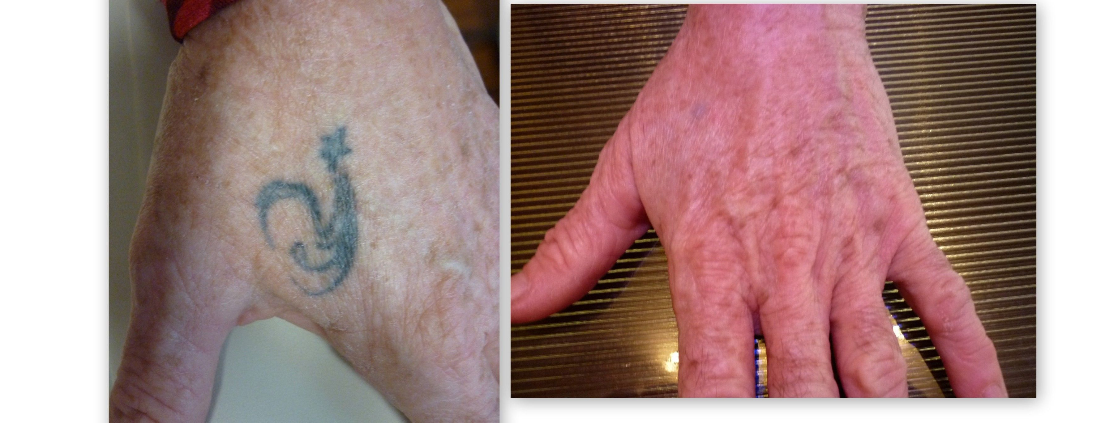 Laser tattoo removal before after 6 treatments on the