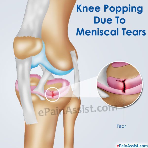 aaeefe1e15 Knee popping is also called as crepitus of the knee. Meniscal tear,  arthritis, chondromalacia patella, runners knee are common medical  conditions that can ...