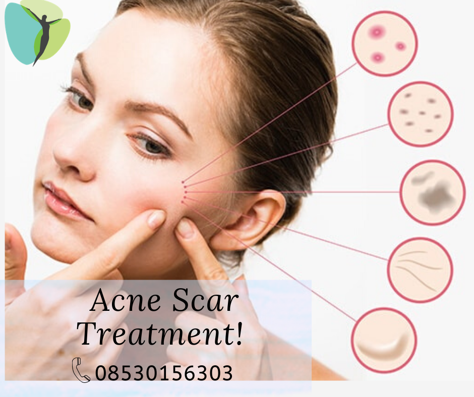 Acne Scar Treatment  Book an Appointment Now! Call: 085301 56303 Shop no 1, lane no 2 Suyog colony n...