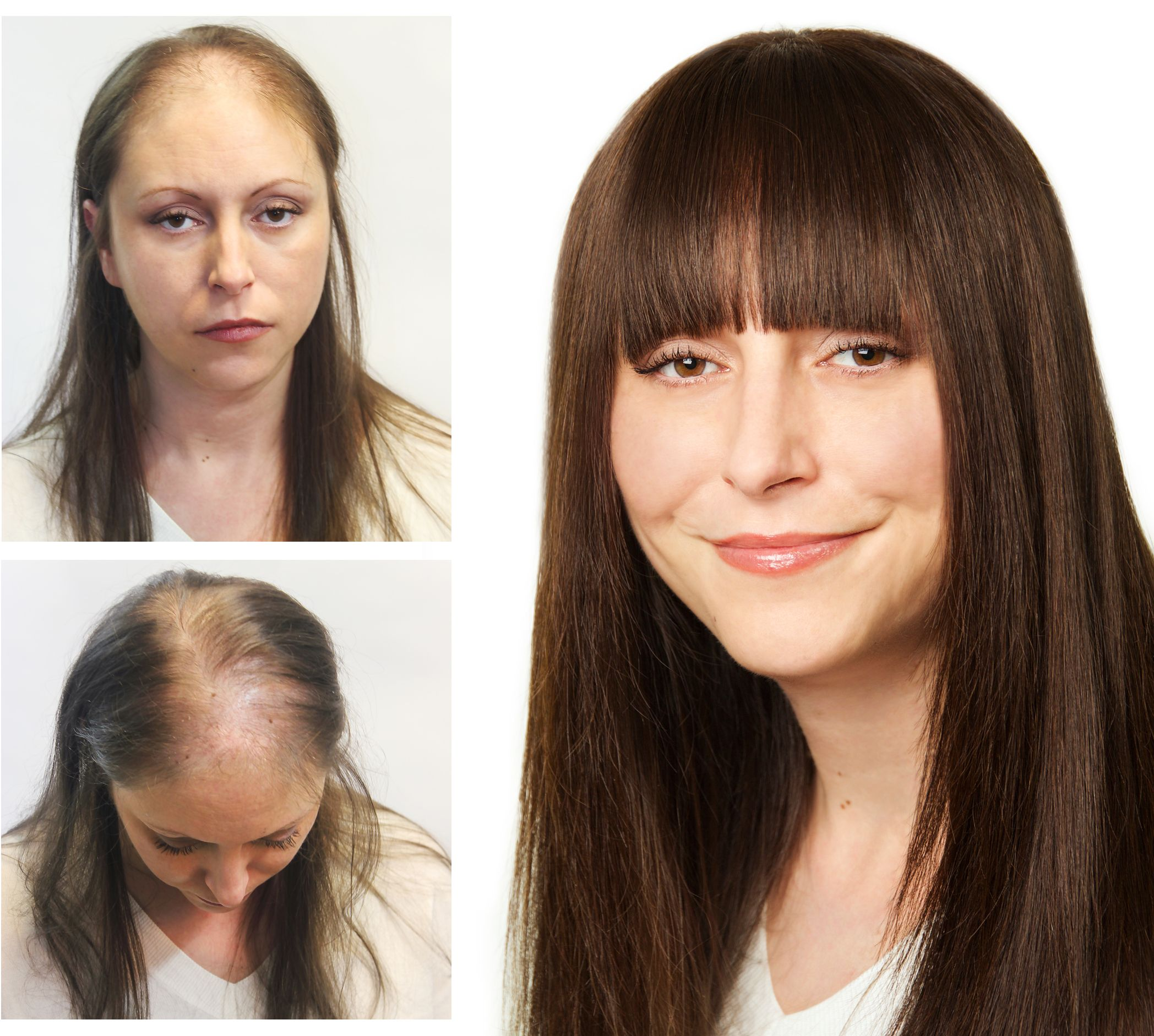 Our Client Helen Who Suffers From Genetic Hair Thinning Before And