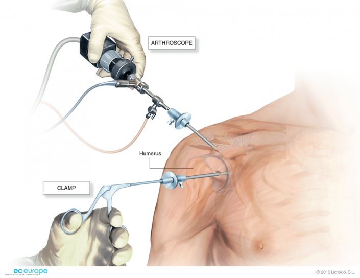 Shoulder arthroscopy | shoulder | Pinterest | Shoulder arthroscopy ...