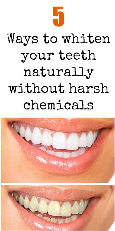 5 Ways To Whiten Your Teeth Naturally Without Harsh Chemicals