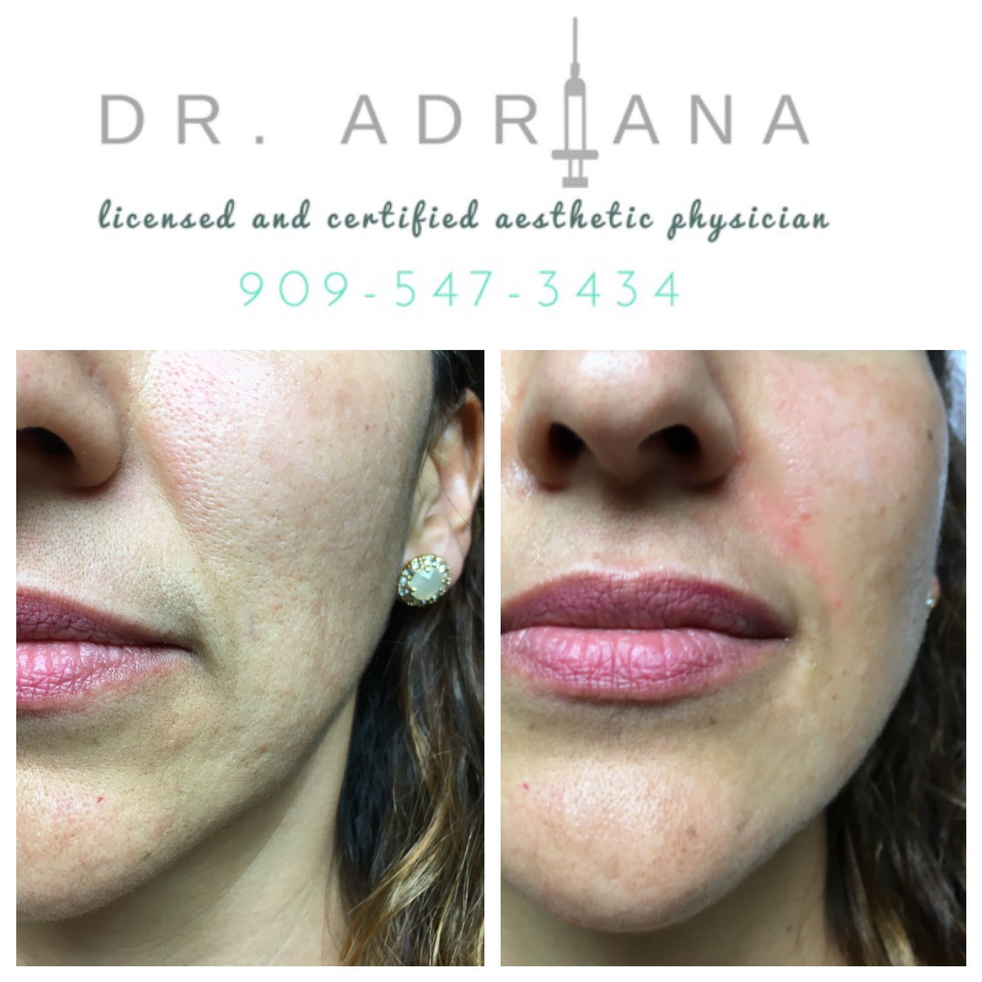 This patient wanted her nasolabial folds, also known as the