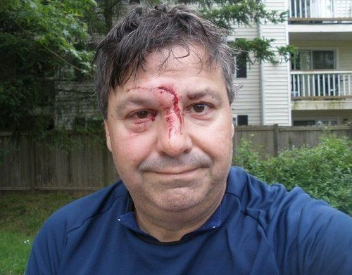 bashed fore head - Google Search