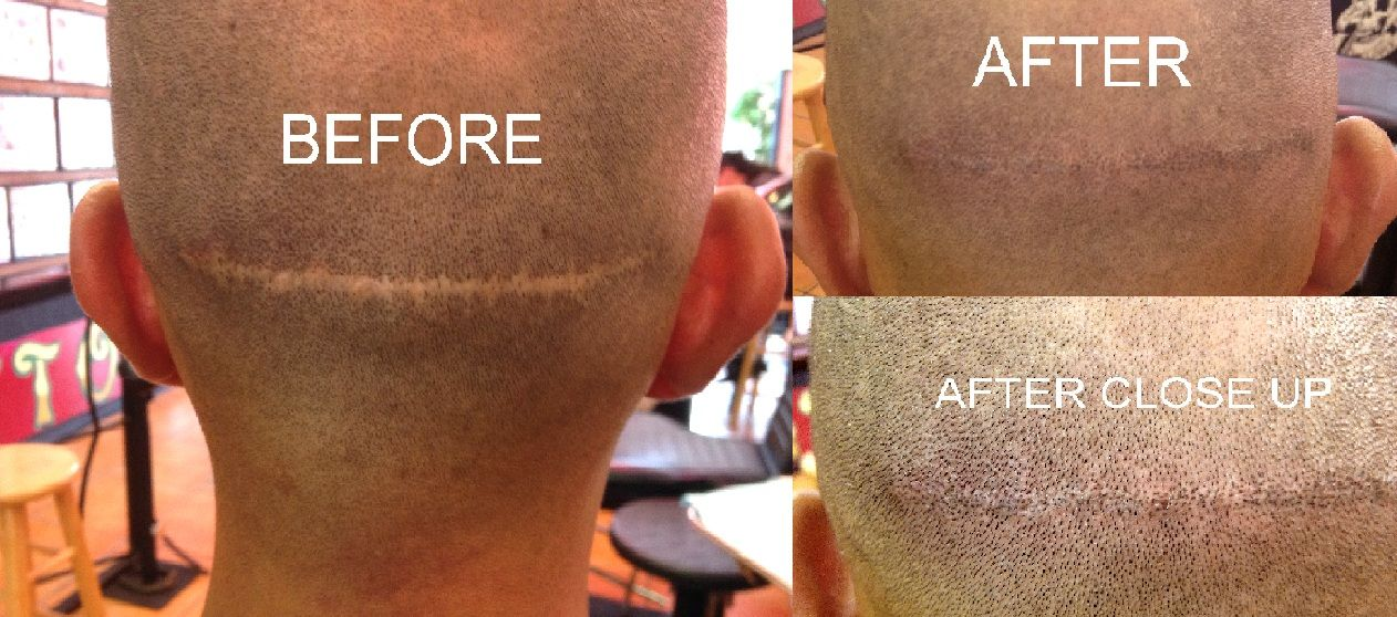 Cover up hair replacement tattoo by jenny forth miami