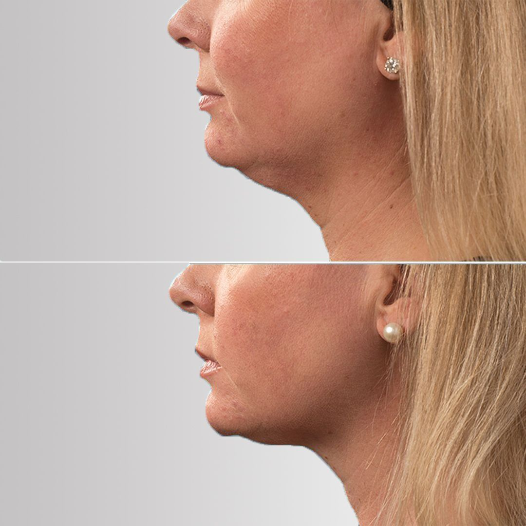 Pin On Before After Pictures Botox Juvederm Coolsculpting Ultherapy