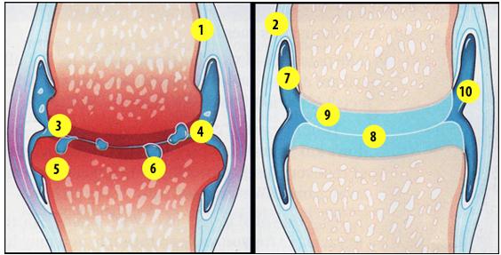 tratamentul artrozei în Ayurveda)