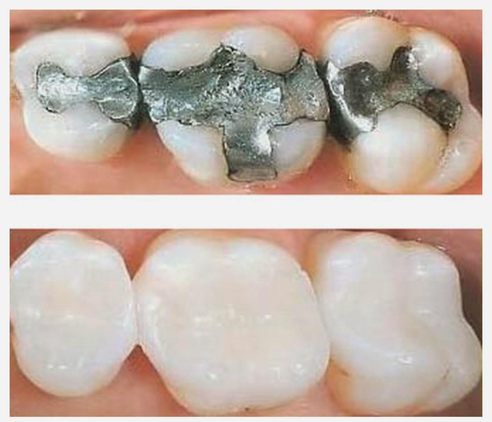plombages dentaires soins dentaires mal de dent 8 rem des en 2018 pinterest dentaire. Black Bedroom Furniture Sets. Home Design Ideas