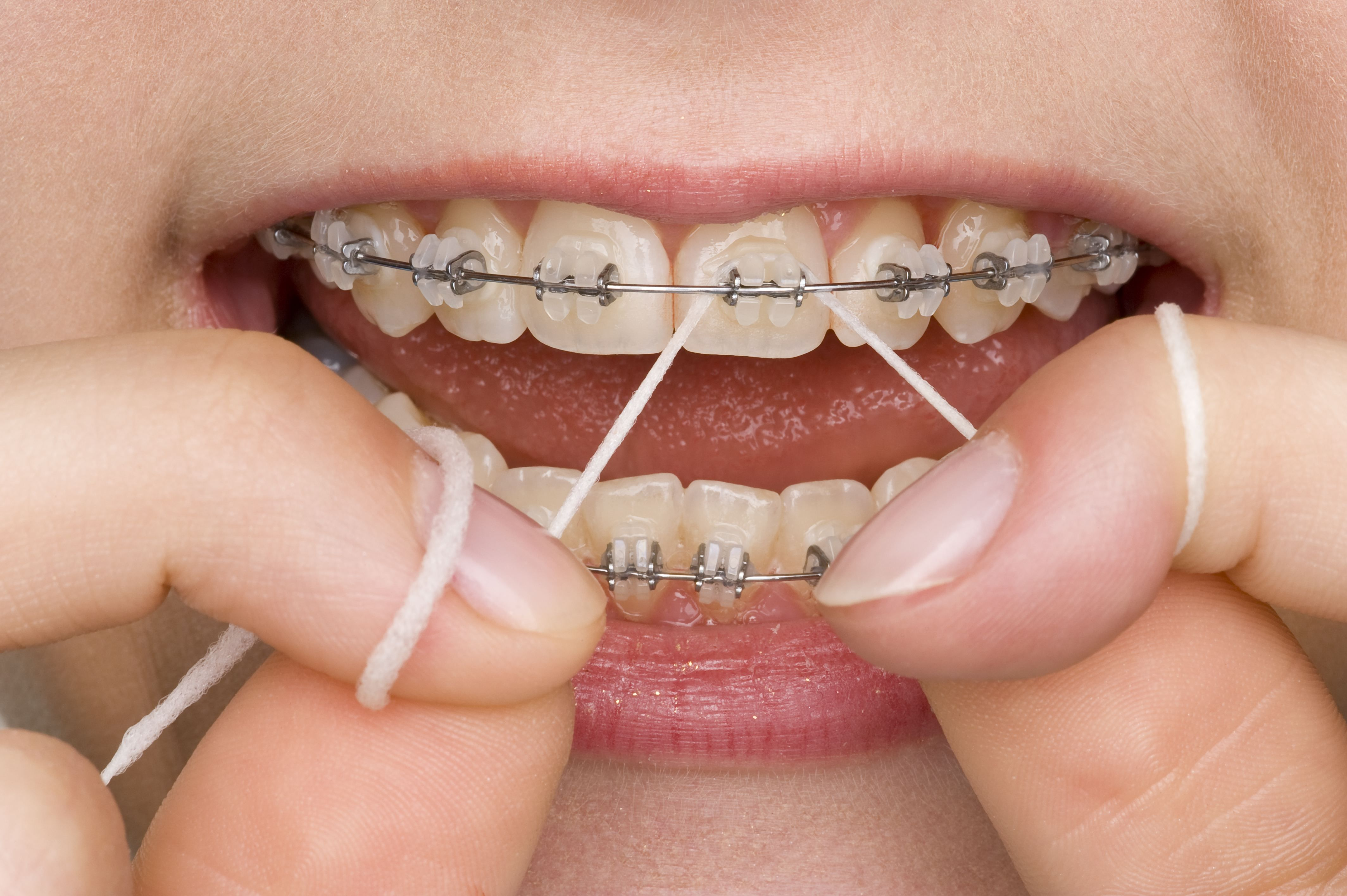 Brushing and flossing with braces is a challenge and you